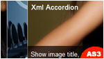 XML Accordion &#13;